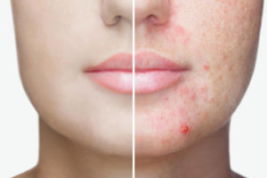 Acne & Cystic Skin Disorders