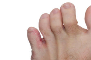 Athletes Foot (Fungal Yeast)