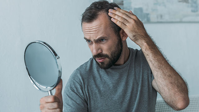 man looking at hair loss in handheld mirror