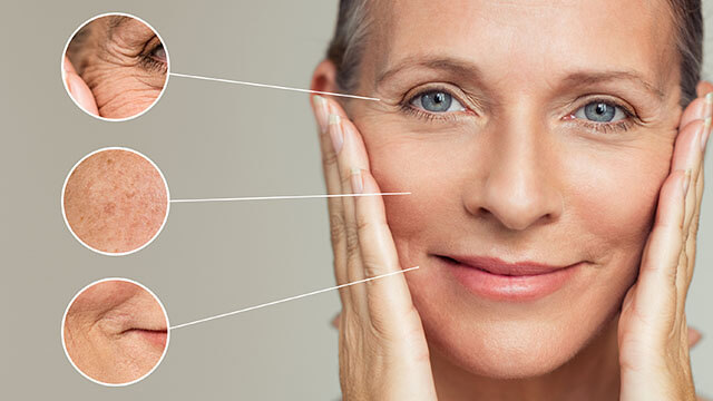 Closeup of wrinkles