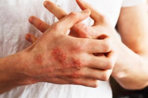 Eczema & Atopic Dermatitis
