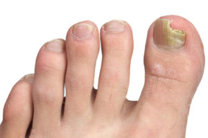 Fungal Yeast (Nail Disorders)